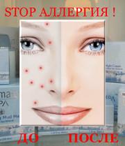 Увлажняющий крем Ultimate SPA для кожи лица,  склонной к акне,  аллергии